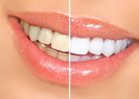 Teeth Whitening - West Los Angeles CA Dentist